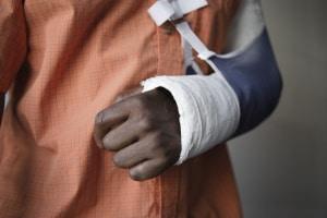 Mit einer Gipshand stellt das Autofahren oft eine Gefährdung des Straßenverkehrs dar und kann entsprechend bestraft werden.