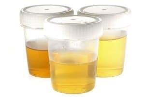 Ein Urintest kann den Konsum von Drrogen bestätigen